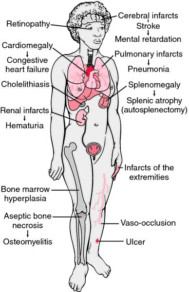 anemia 4